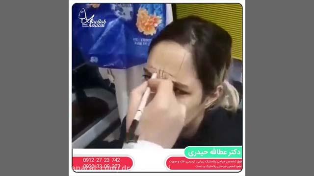 Botox Sample 1