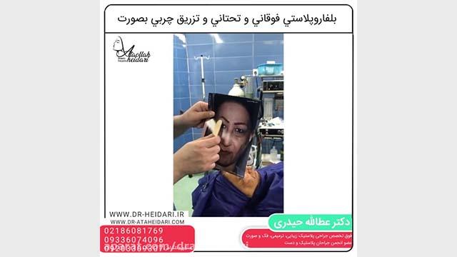 Blepharoplasty Sample 2