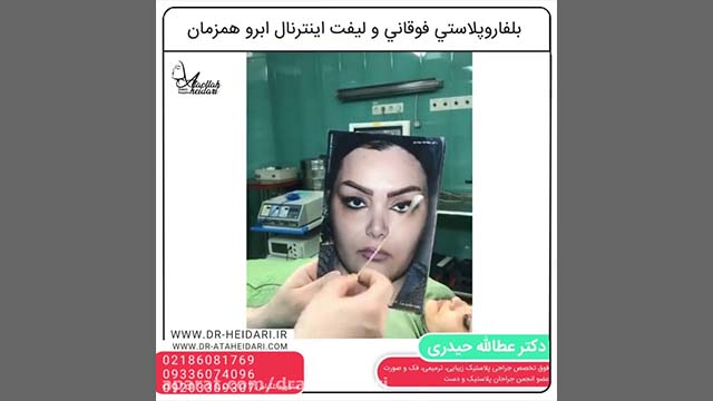 Blepharoplasty Sample 1